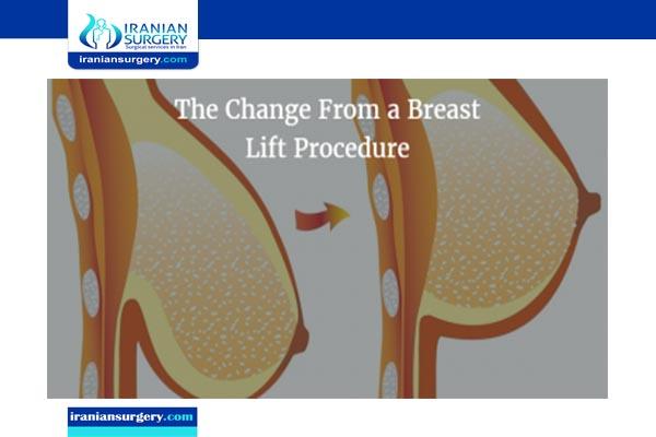 breast lift cost iran