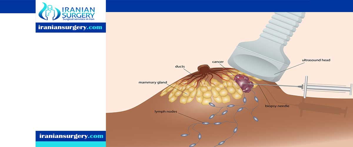 Breast lump biopsy
