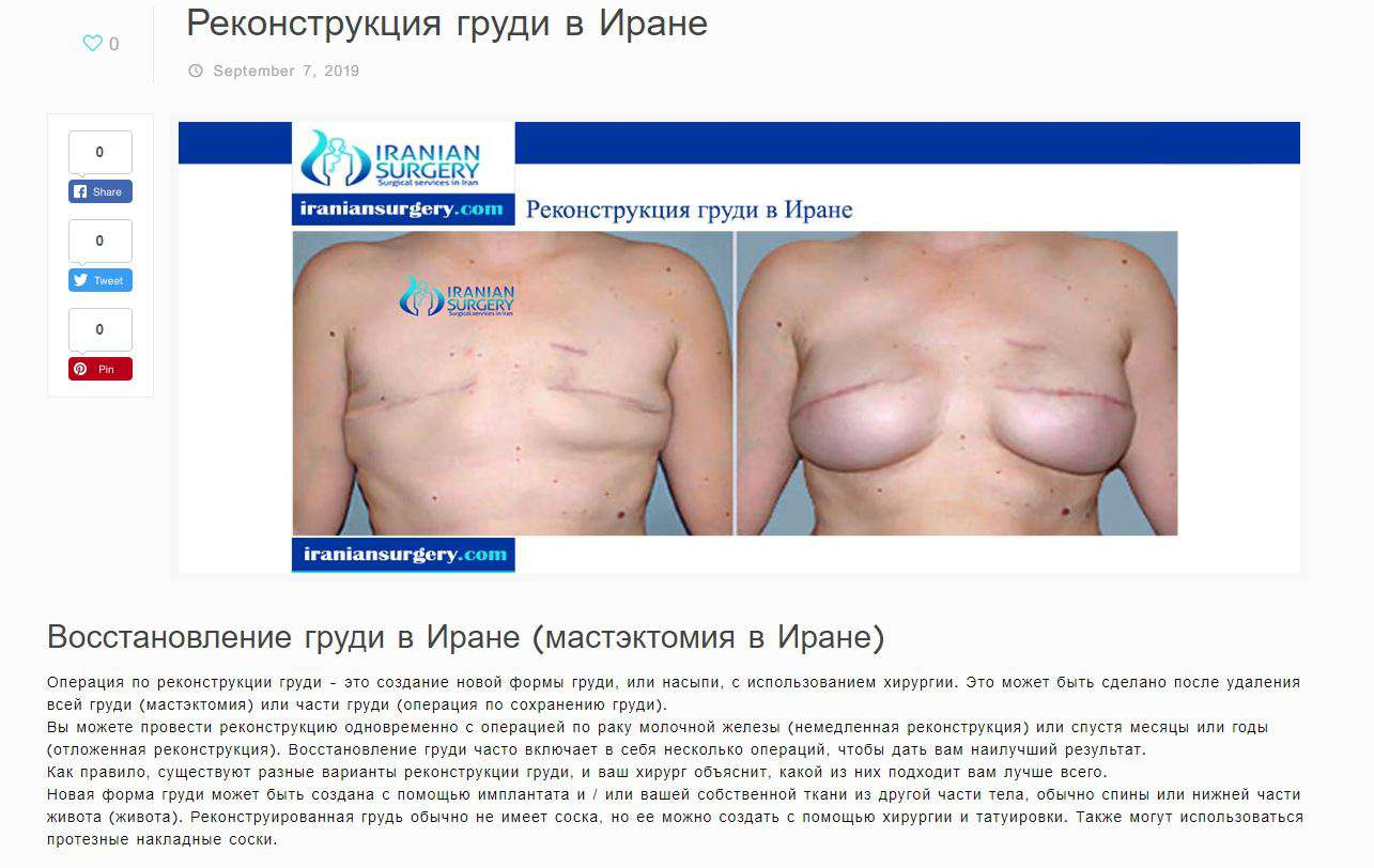 breast reconstruction in iran