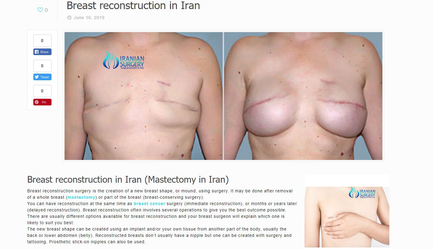 breast reconstruction in iran 2
