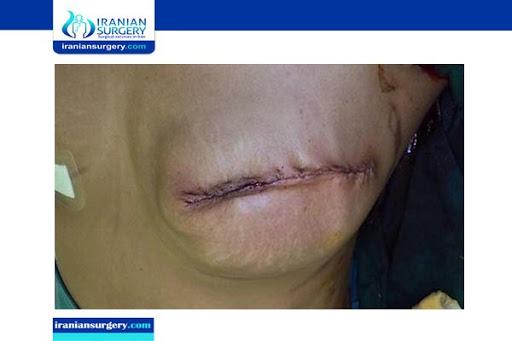breast reconstructionn in iran