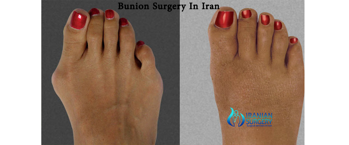 Before and after Bunions surgery