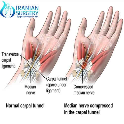 carpal tunnel surgery iran cost