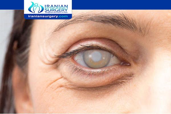 cataract surgery cost in Iran