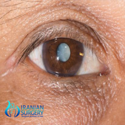 cataract surgery cost in iran