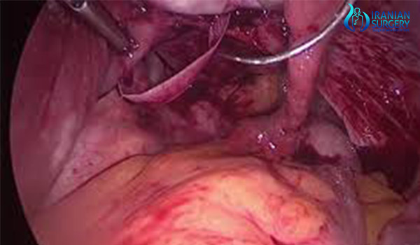 cervical cerclage  surgery in iran3