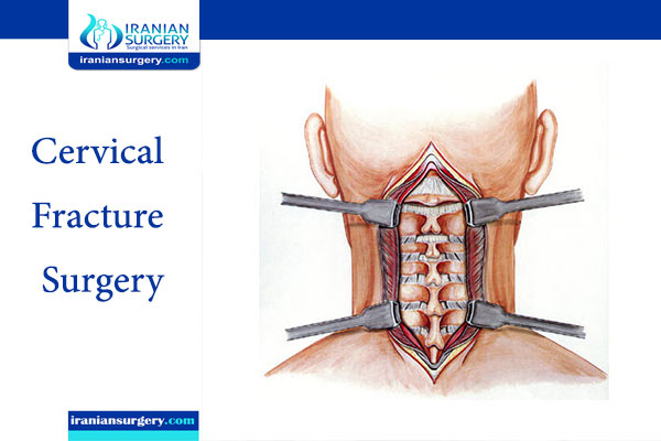 Cervical Fracture Surgery in Iran