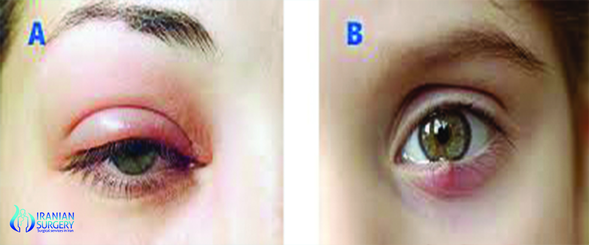 chalazion in iran