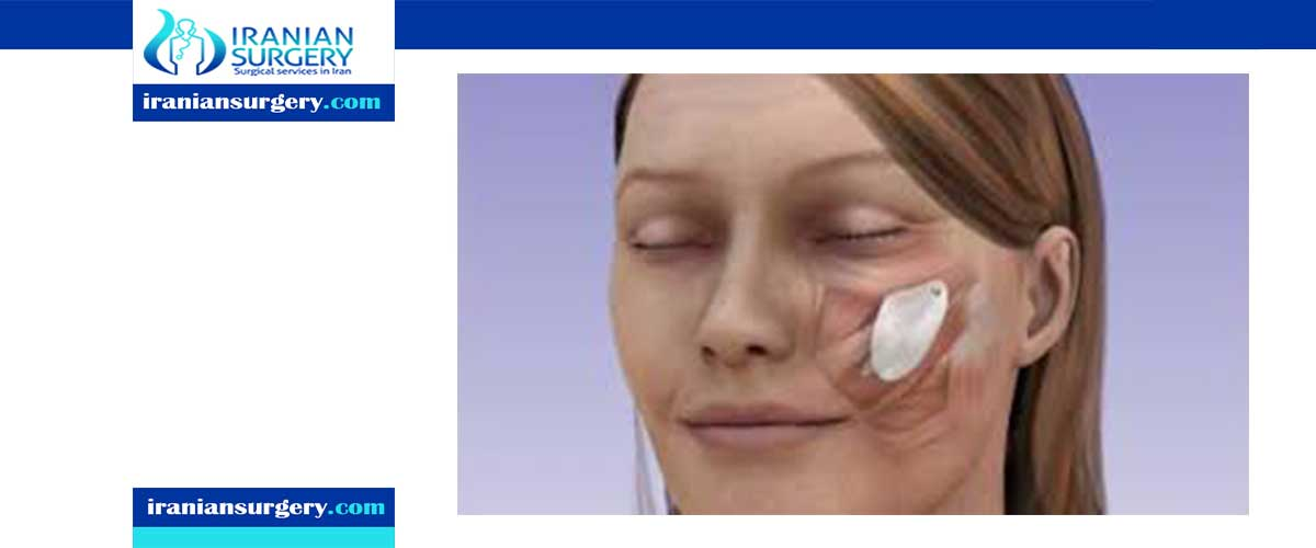 cheek implants recovery