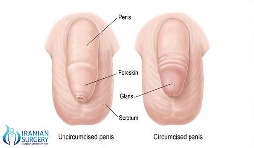 circumcision surgery in Iran