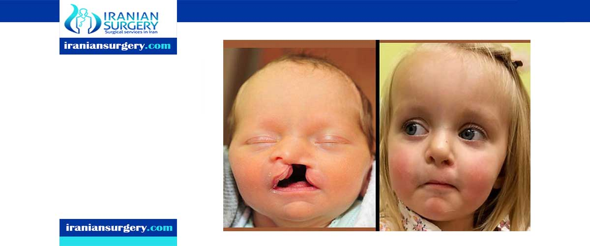 cleft palate surgery ideal age
