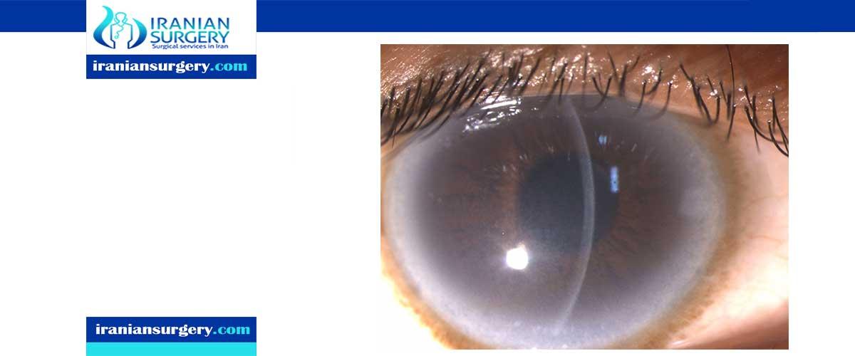 cloudy cornea treatment