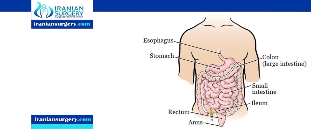colectomy surgery complications