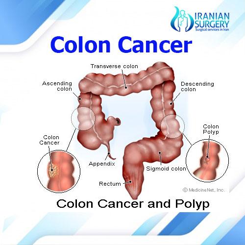 colon cancer treatment iran