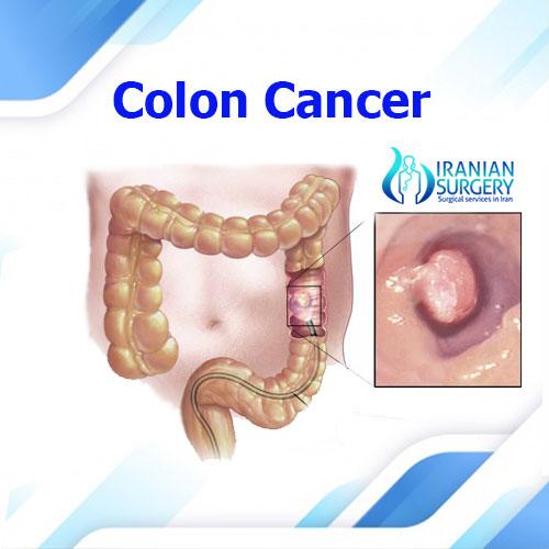colon cancer in iran