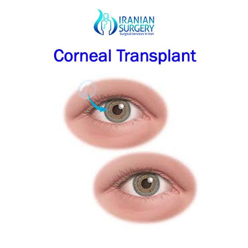 corneal-transplant in iran