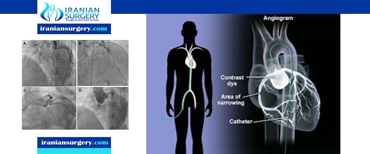 coronary angiogram procedure in iran