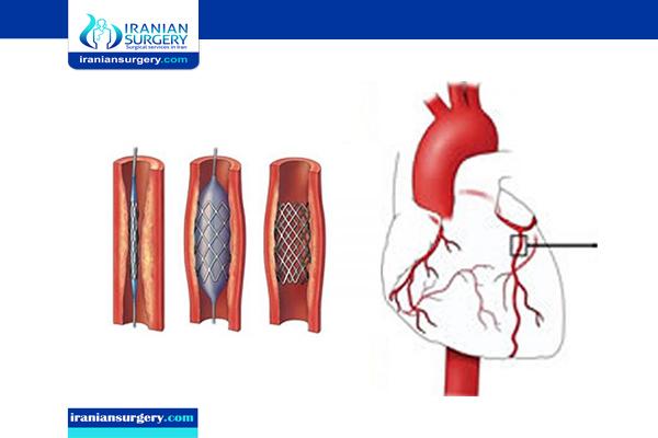 coronary angiogram iran