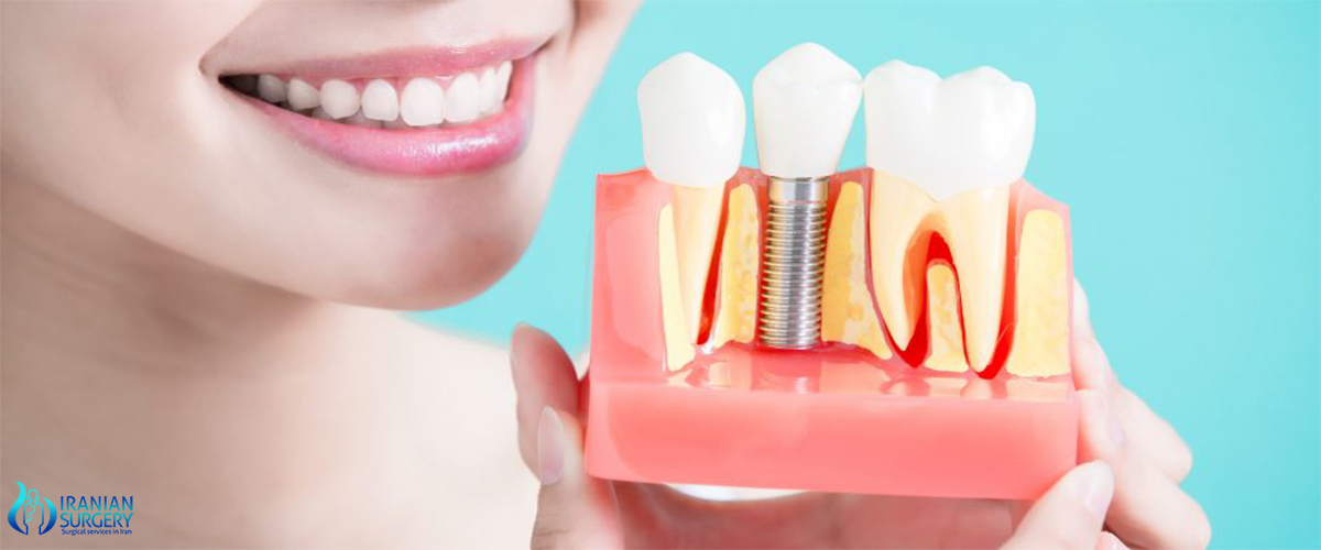 cost of full dental implant iran