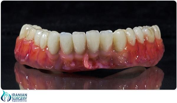 dental brideg in iran 2
