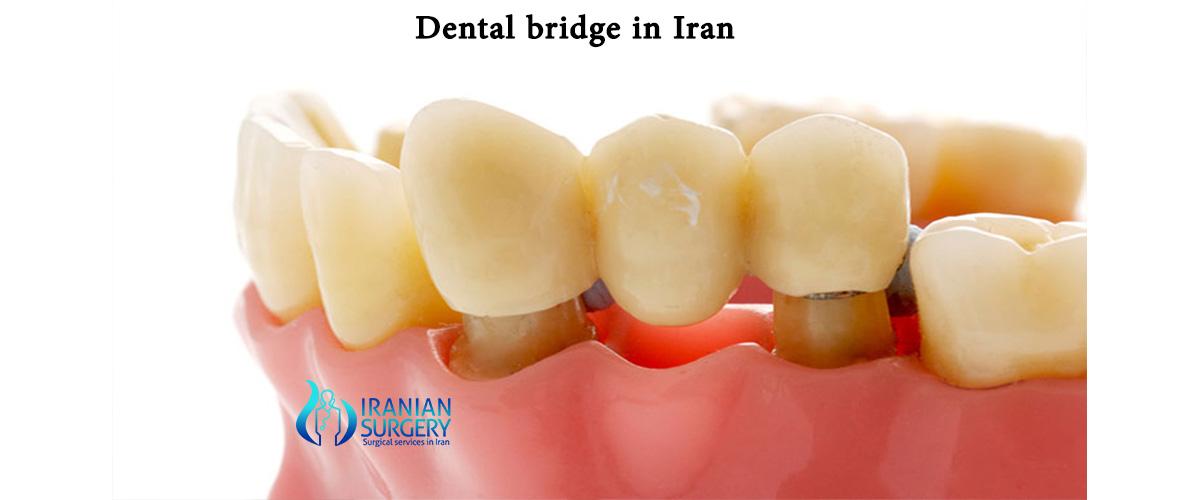 dental bridge cost iran