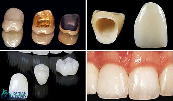 dental crown 500 2