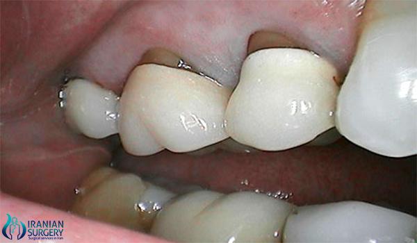 dental crown 500 3