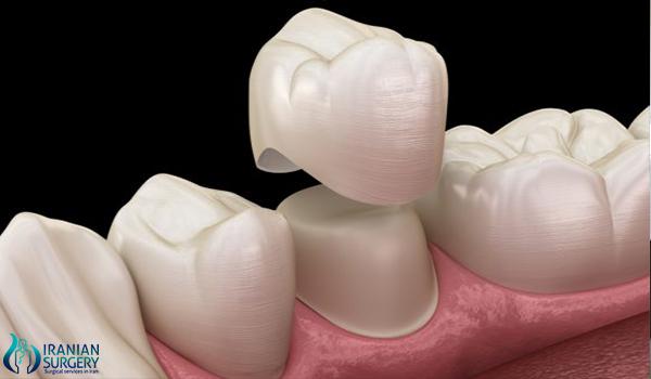 dental crown in iran500 1