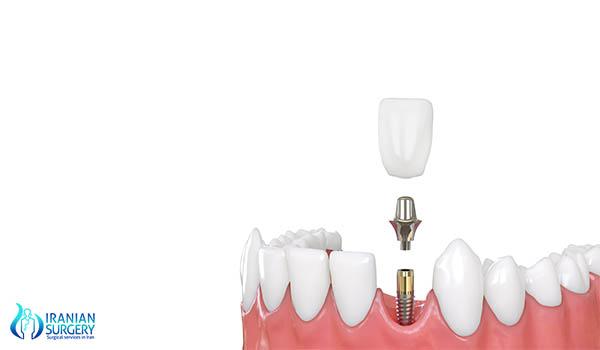 dental surgery in iran