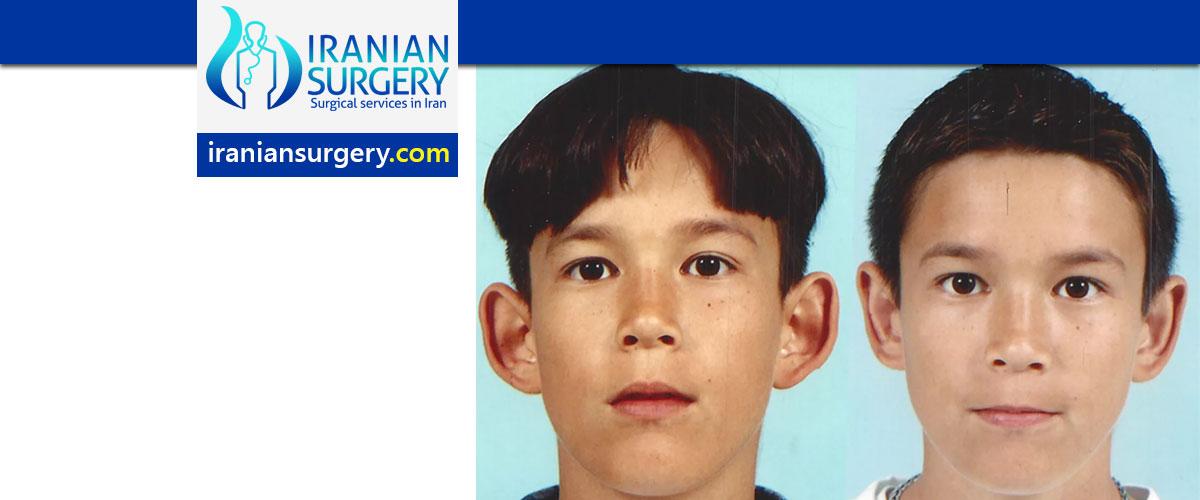 Otoplasty (Ear reshaping surgery) in Iran