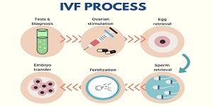 IVF_4