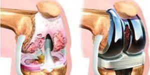 جراحة العظام في ايران