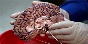 افضل اطباء طب العصبي في ایران