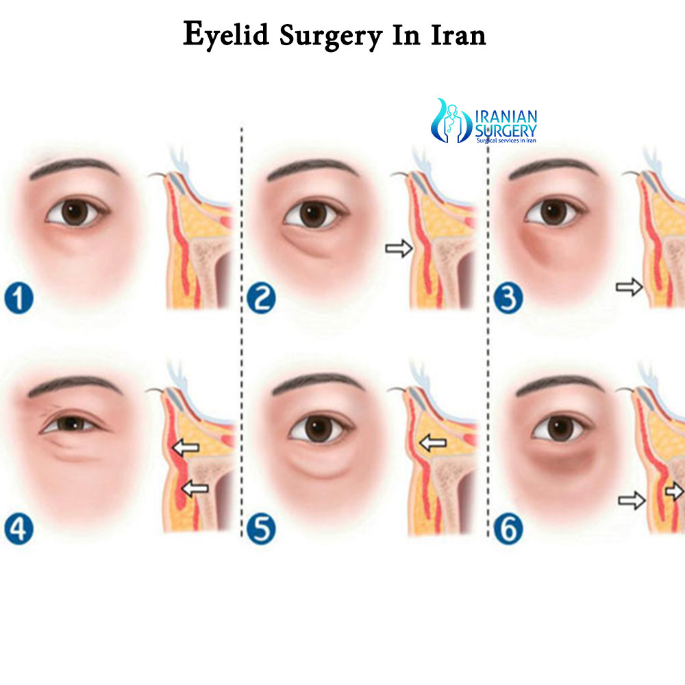 ptosis surgery cost in iran