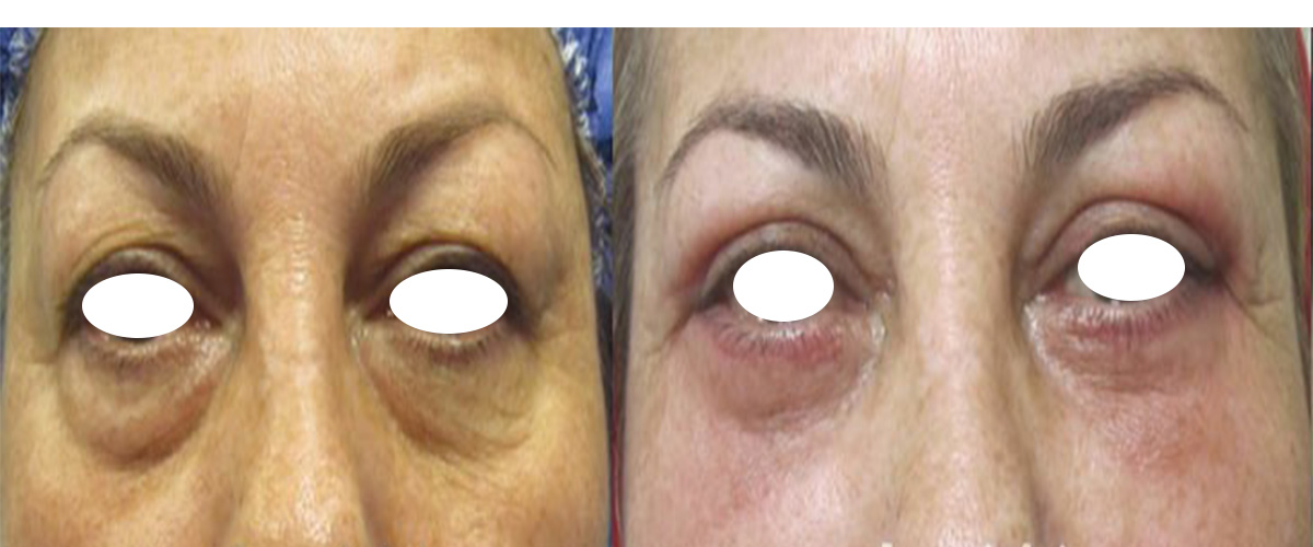 cost of blepharoplasty in iran