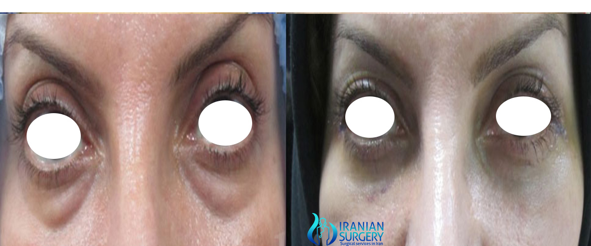 cost of blepharoplasty iran