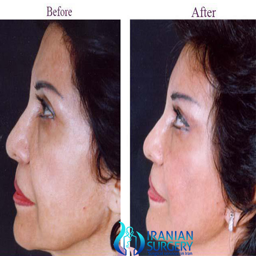 facelift cost in iran
