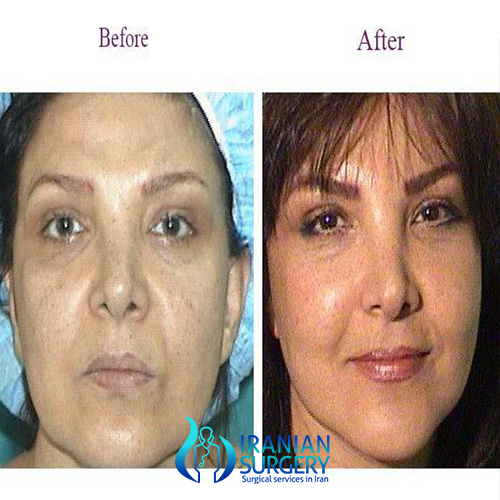 Lip Thread Lift Cost