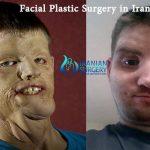 Facial plastic surgery in Iran