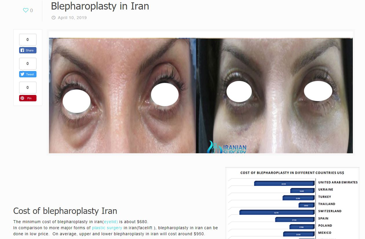 facial plastic surgery in iran 3