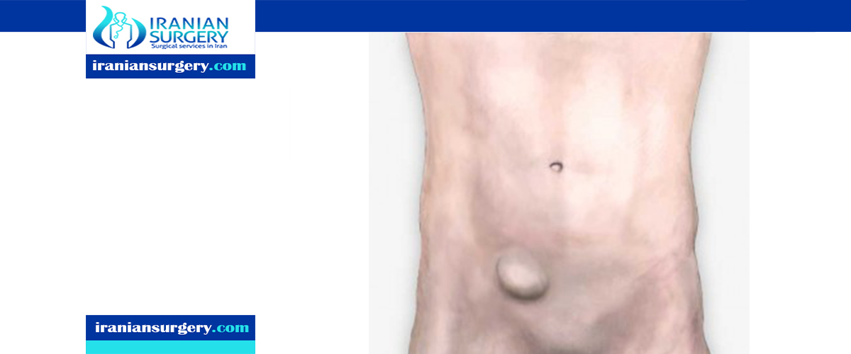 femoral hernia recovery