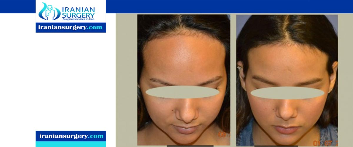 forehead reduction surgery procedure