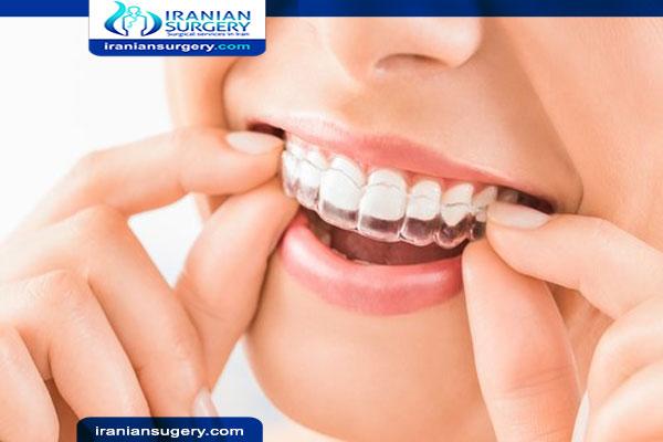 التقويم الشفاف تقويم الاسنان الشفاف انواع تقويم شفاف سعر التقويم الشفاف تكلفة تقويم الاسنان الشفاف