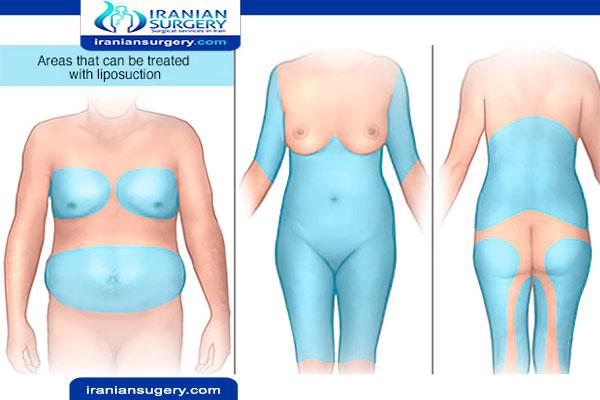 شفط دهون الفخذين بالليزر شفط الافخاذ عملية شفط الدهون من الفخذين شفط دهون الافخاذ