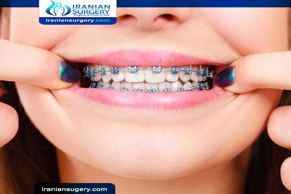 تتفاعل راحة الهبوط طريقة استخدام خيط الاسنان مع التقويم Comertinsaat Com