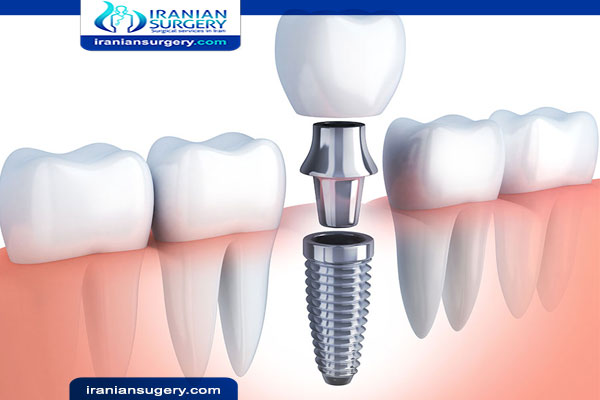 كم يستمر الالم بعد زراعة الاسنان؟