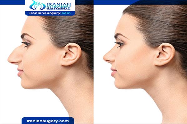 Rhinoplasty In Iran Best Nose Job Iran Surgeon Hospital Iraian Surgery