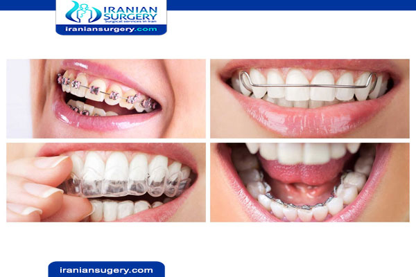 سعر تقویم الاسنان