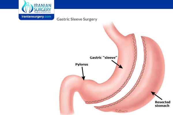 How do you qualify for gastric sleeve surgery?