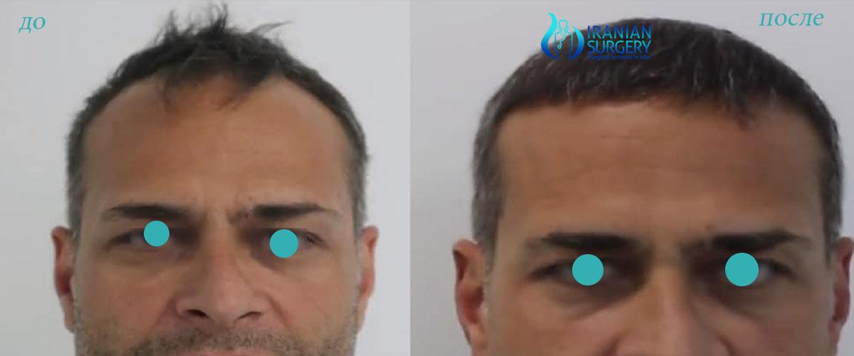 После пересадки волос в Иране